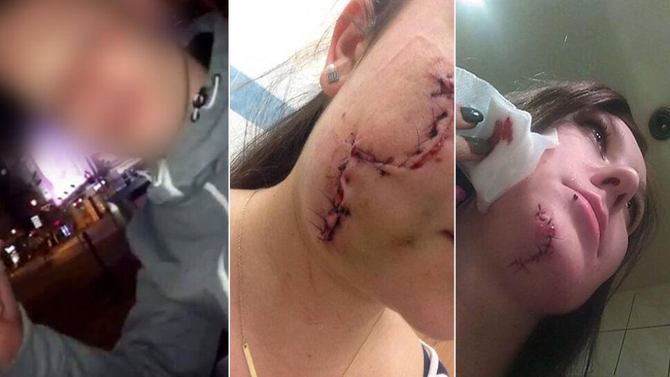 Oszpecił twarze dwóch dziewczyn rozbitą butelką. Jest akt oskarżenia