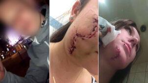 Pociął twarze kobiet rozbitą butelką.