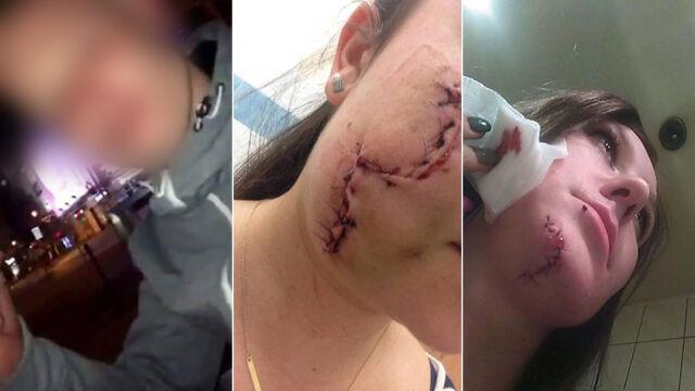 Oszpecił butelką twarze młodych kobiet. Kary dla policjantów prowadzących śledztwo