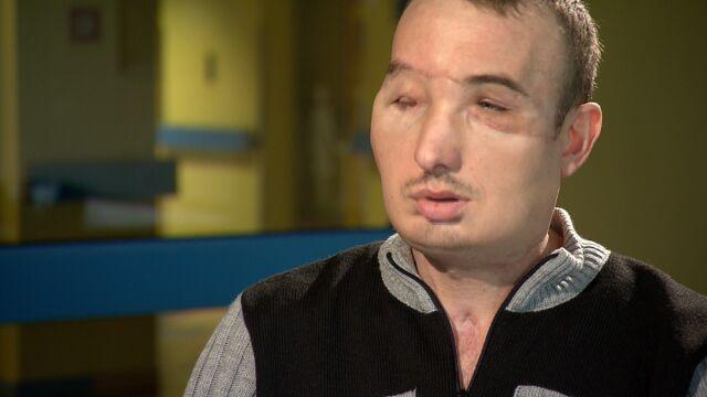 Polski przeszczep twarzy najlepszym zabiegiem na świecie