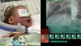 Szpital wypisał małą Nel z igłą w płucach