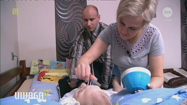 Lekarze stwierdzili u chłopca porażenie mózgowe, małogłowie i padaczkę