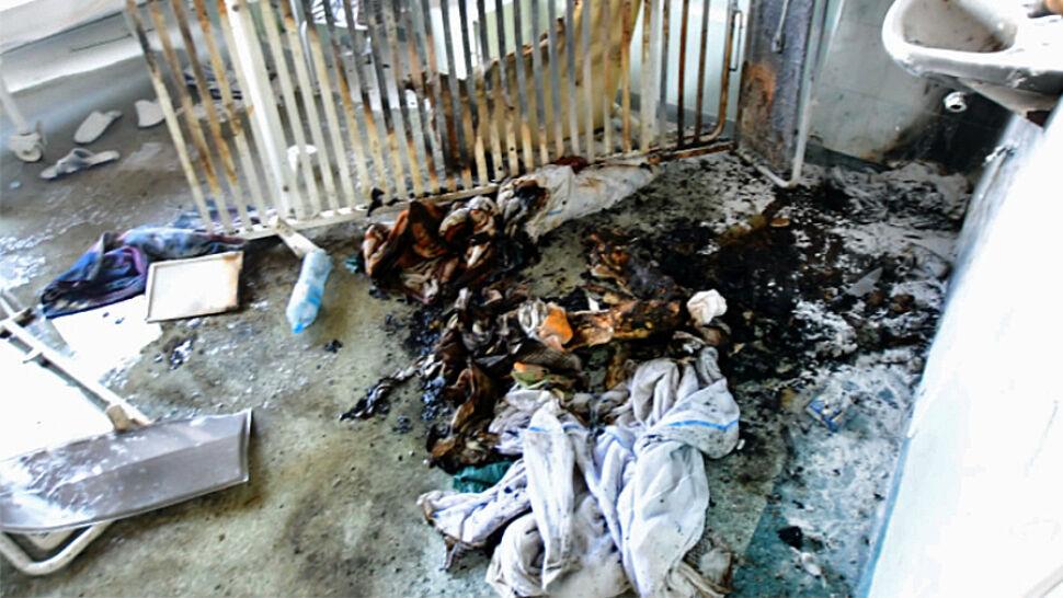 Podczas pożaru w szpitalu w Kutnie spłonął przepięty do łózka pacjent