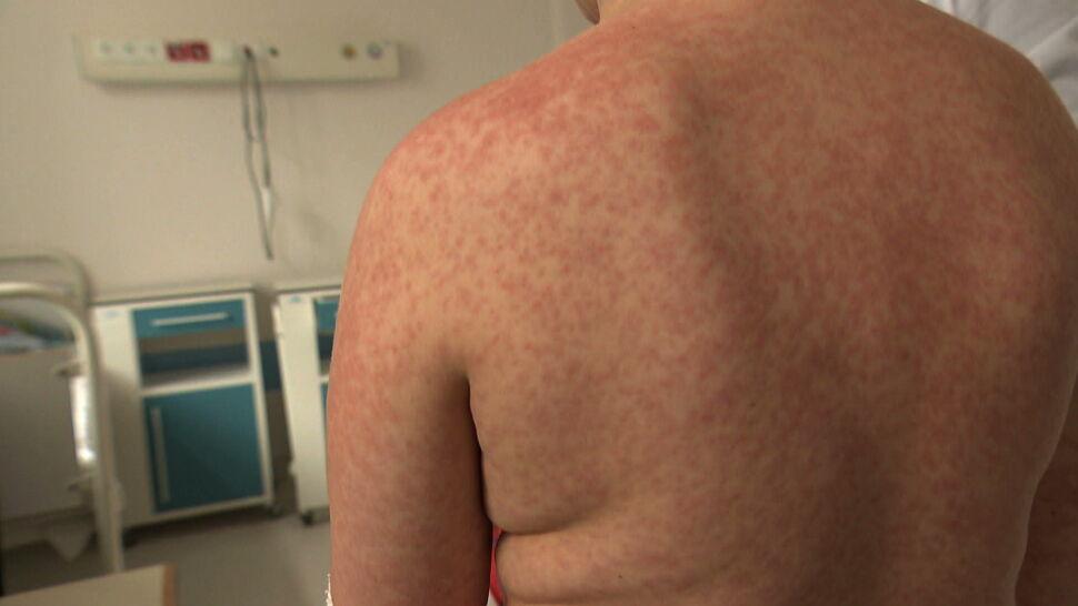 WHO alarmuje: chorych na odrę przybywa w zastraszającym tempie