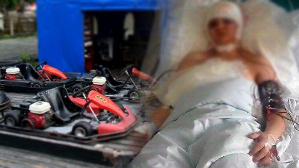 Koszmarny wypadek na gokarcie: włosy 17-latki wkręciły się w silnik i zerwały wraz ze skórą