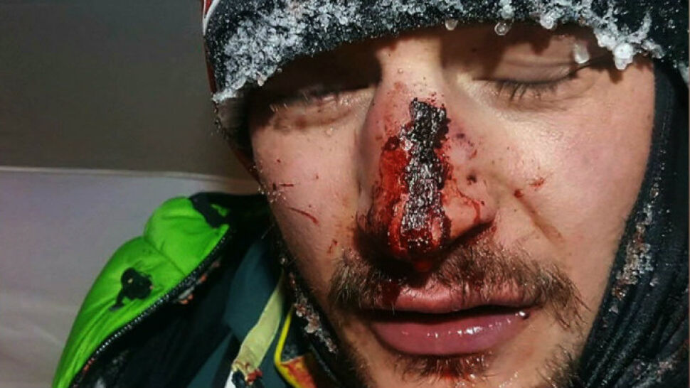Adam Bielecki miał wypadek. Trafił go kamień